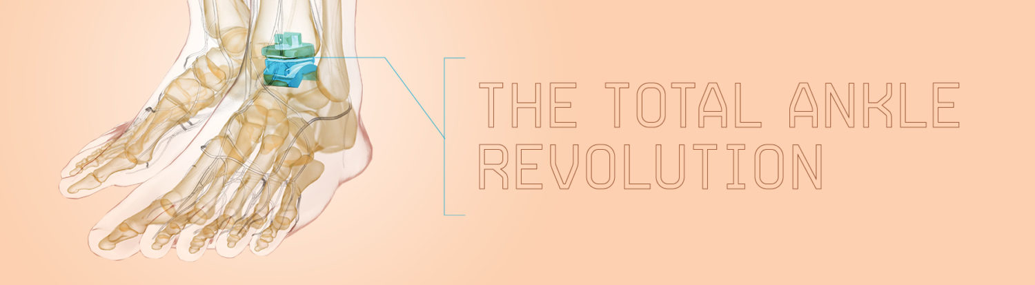 The Total Ankle Revolution
